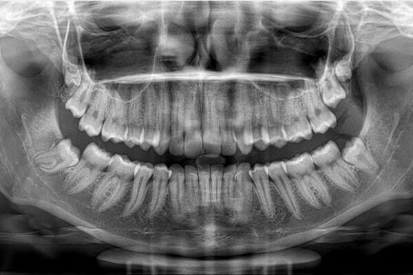 RTG stomatologiczne